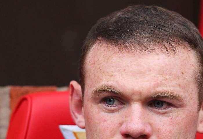 Wayne Rooney y su calvicie