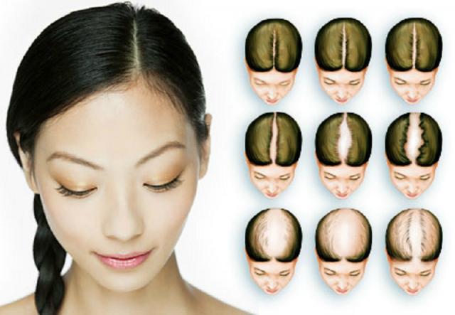La caida de pelo en mujeres